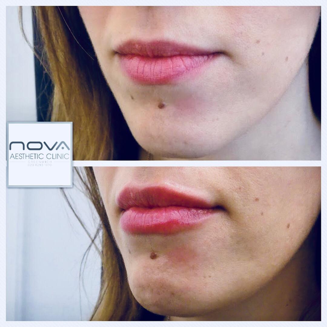 Lip Enhancement - Nova Clinic
