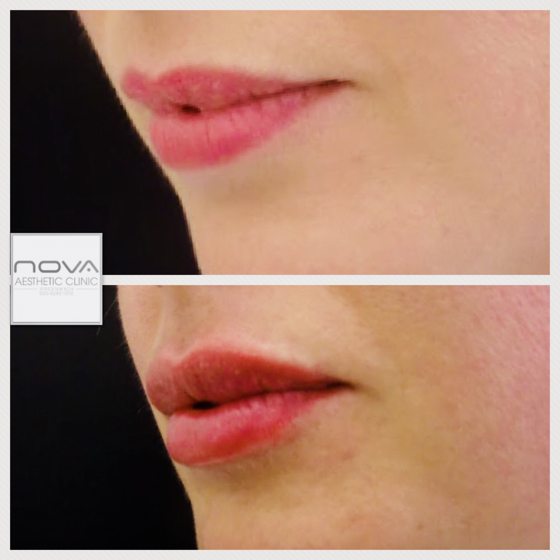 Lip Enhancement - Nova Clinic