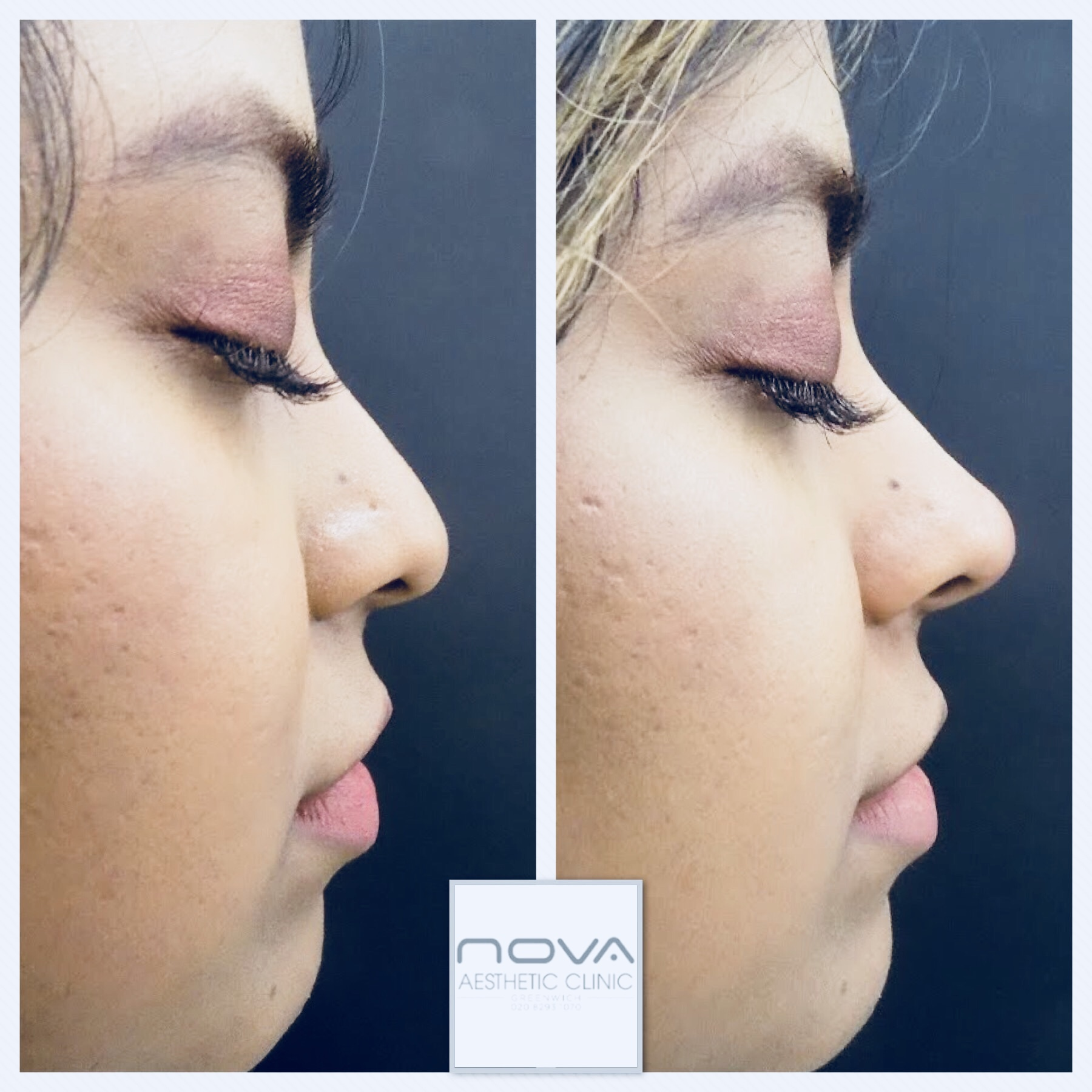 Nose Reshaping Fillers - Nova Clinic
