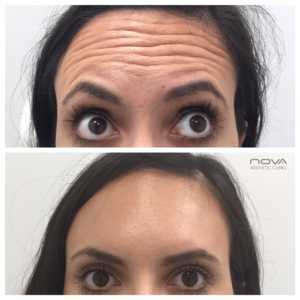 Botox and antiwrinkle treatment